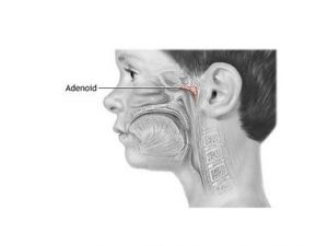 Adenotomie